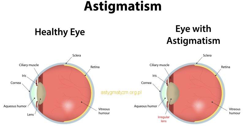 Co to jest Astygmatyzm